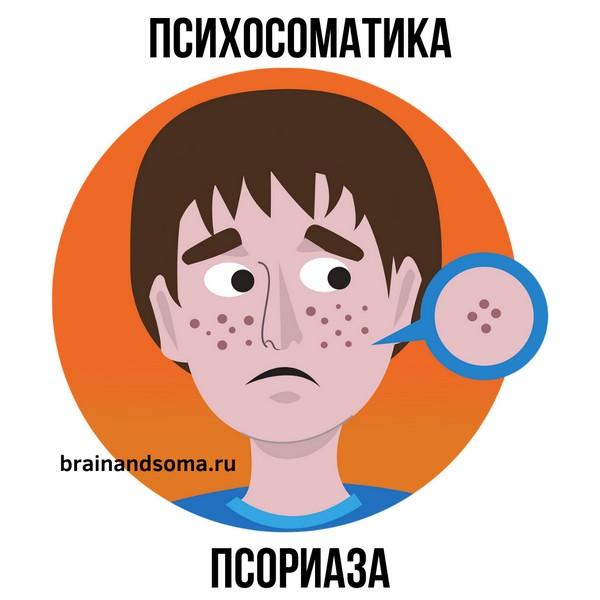 психосоматика псориаза